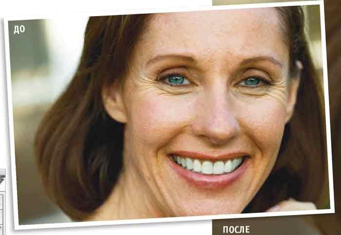 Цифровая косметология, ретушь лица